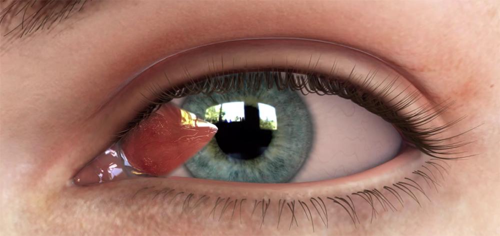 mộng mắt